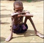 Starvation in Bangladesh